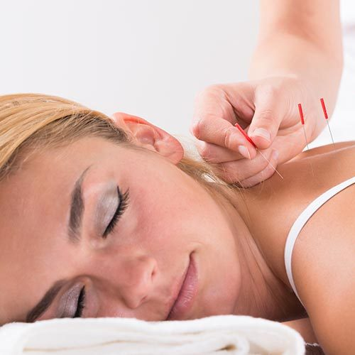 Chiropractic Erie CO Acupuncture
